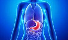 Лечение рака желудка израиль