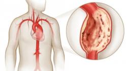 аневризм аорты