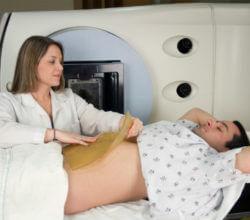 радиотерапия рак кишечника