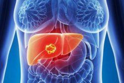 рак печени в израиле лечение