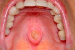 рак слизистой рта