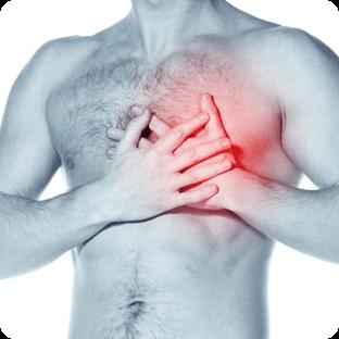 инфаркта миокарда