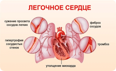 Лечение легочного сердца