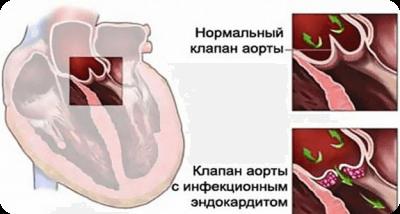 Эндокардит симптомы