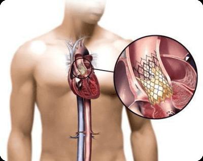 Замена сердечных клапанов