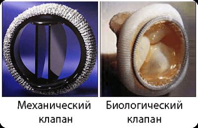 механический и биологический клапан