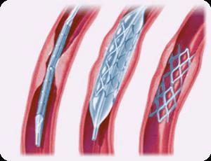 Коронарное стентирование