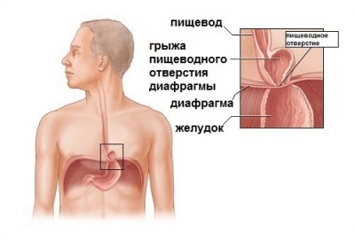 Грыжи пищеводного отверстия диафрагмы