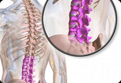 Диагностика стеноза позвоночного канала