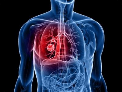 Диагностика рака легких