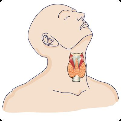 лечения рака щитовидной железы