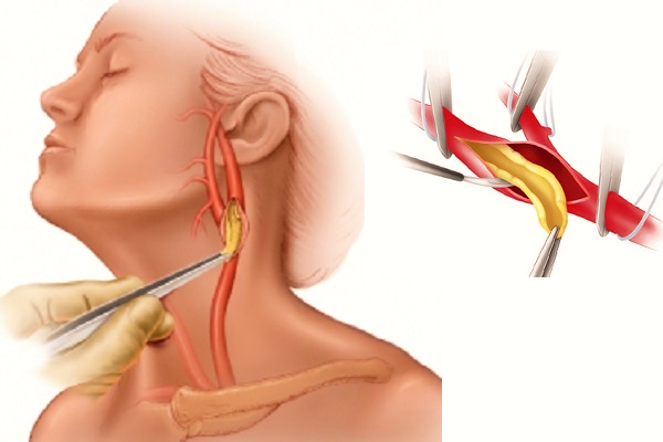 Комбинированные операции на шейных артериях