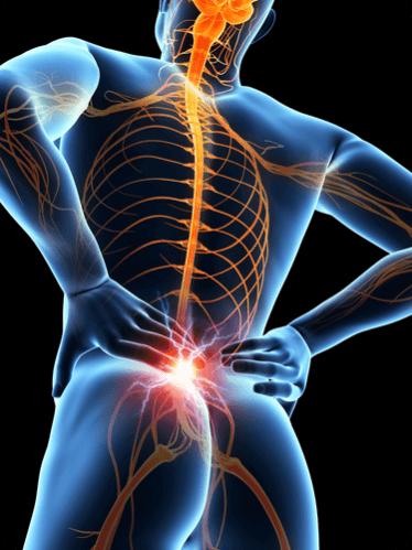 Лечение опухоли спинного мозга