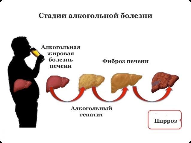 алкогольного гепатит