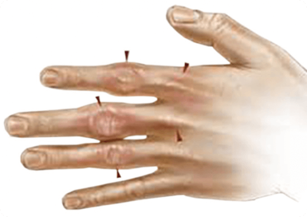 гемохроматоза