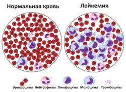 лейкемия