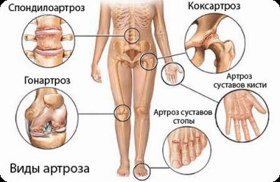 Диагностика артроза